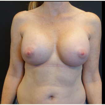 35-44 year old woman treated with Mentor Breast Implants after 3529813