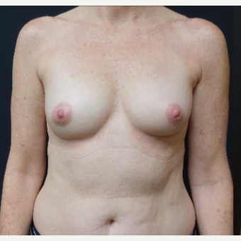 35-44 year old woman treated with Mentor Breast Implants before 3529813