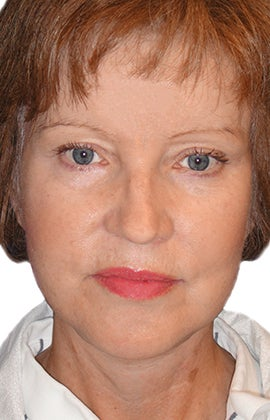 Facelift, Neck lift, Browlift, Lower Blepharoplasty (eyelid lift) after 319194