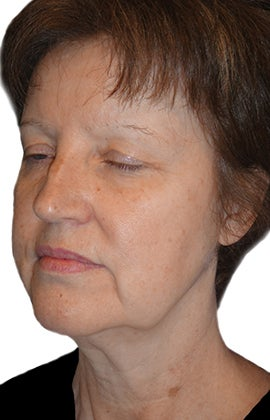 Facelift, Neck lift, Browlift, Lower Blepharoplasty (eyelid lift) 319194