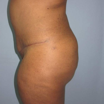 35-44 year old woman treated with Tummy Tuck