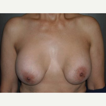 Breast implant removal and breast lift in a 49 year old lady. before 2455898