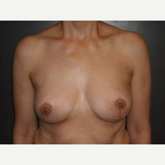 Breast implant removal and breast lift in a 49 year old lady. after 2455898