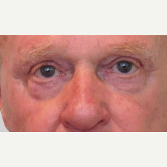 65-74 year old man treated with Eyelid Surgery after 3124308