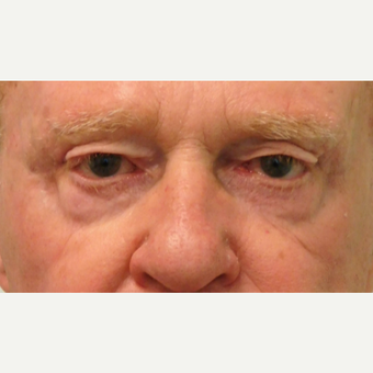 65-74 year old man treated with Eyelid Surgery before 3124308