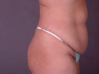 Tummy Tuck before 280144