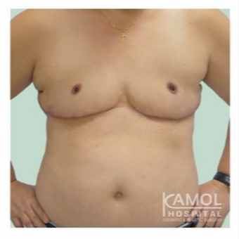 FTM Chest Masculinization Surgery after 2707333