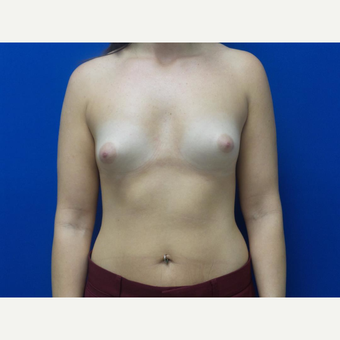25-34 year old woman treated with Breast Augmentation before 3059526