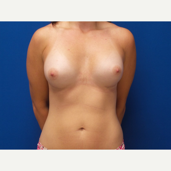 25-34 year old woman treated with Breast Augmentation after 3059526