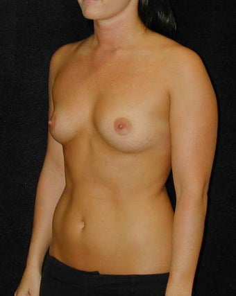 Breast Augmentation  before 93102