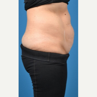 35-44 year old woman treated with SculpSure before 3414107