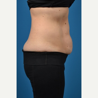 35-44 year old woman treated with SculpSure after 3414107