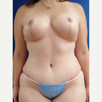 35-44 year old woman treated with Mommy Makeover after 3322436