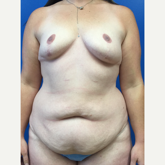 35-44 year old woman treated with Mommy Makeover before 3322436