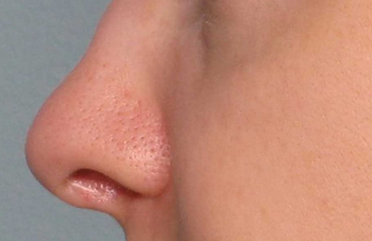 Juvederm before 460603