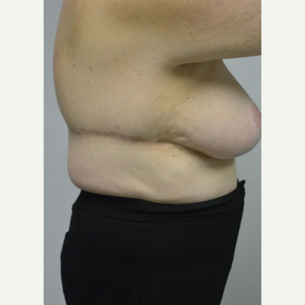 65-74 year old woman treated with Upper Body Lift/ Bra Line Back Lift after 3850418
