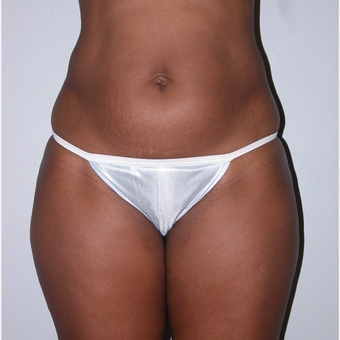 45-54 year old woman treated with Liposuction before 2762850