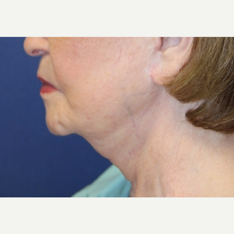81 year old woman treated with a Neck Lift before 3181159