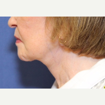 81 year old woman treated with a Neck Lift after 3181159