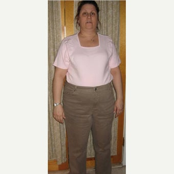 Gastric Bypass Surgery 7 years post op