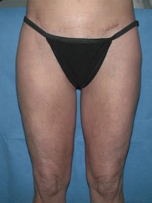 Thigh Lift after 1478741