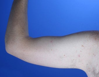 36 year old male weight loss patient with arm laxity 777570