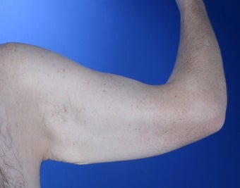 36 year old male weight loss patient with arm laxity before 777570