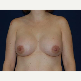 45-54 year old woman treated with Breast Lift with Implants after 3370710