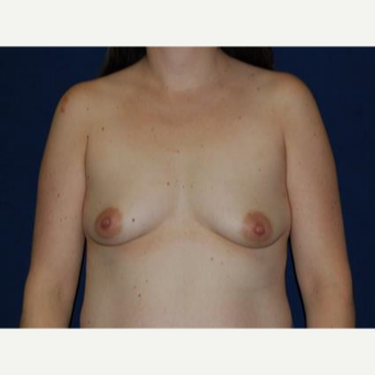 45-54 year old woman treated with Breast Lift with Implants before 3370710
