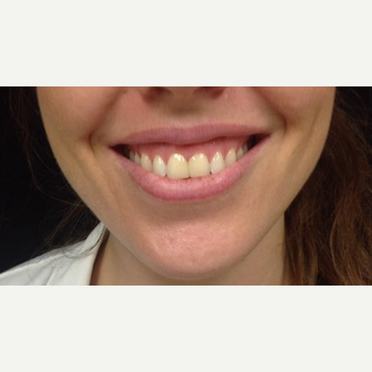 25-34 year old woman treated with 3 units Botox for Gummy Smile before 3744778