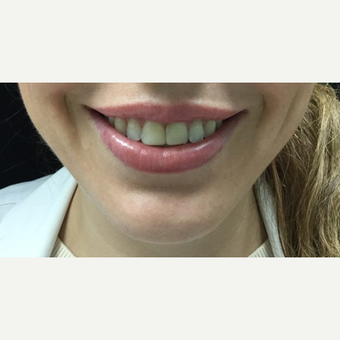 25-34 year old woman treated with 3 units Botox for Gummy Smile after 3744778