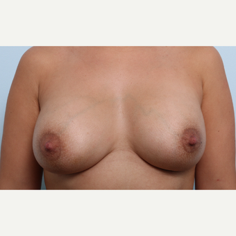 Breast Augmentation after 3345896