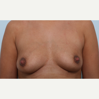 Breast Augmentation before 3345896