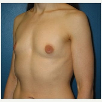 Silicone implant breast augmentation on 30 year old patient 1755745