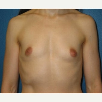 Silicone implant breast augmentation on 30 year old patient before 1755745