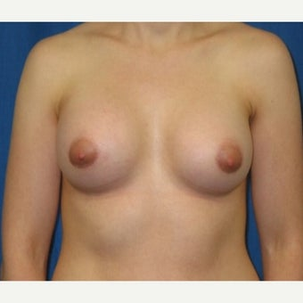 Silicone implant breast augmentation on 30 year old patient after 1755745