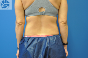 CoolSculpting before 1177674