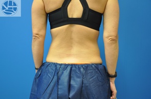 CoolSculpting after 1177674