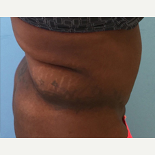 Liposuction before 3278941