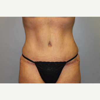 35-44 year old woman treated with Tummy Tuck after 3529098