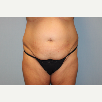 35-44 year old woman treated with Tummy Tuck before 3529098