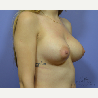 25-34 year old woman treated with Breast Augmentation before 3386419