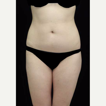 18-24 year old woman treated with Liposuction after 3376813
