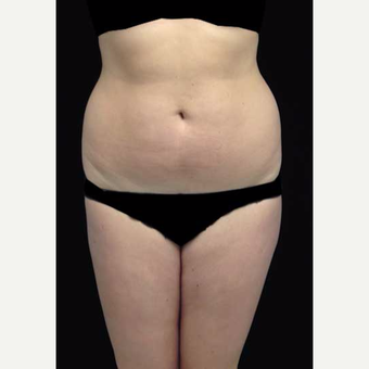 18-24 year old woman treated with Liposuction before 3376813