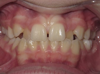 Teen Orthodontic treatment with braces before 1420774