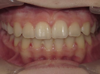 Teen Orthodontic treatment with braces after 1420774