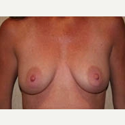 35-44 year old woman treated with Breast Lift before 3339043