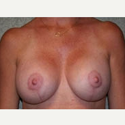 35-44 year old woman treated with Breast Lift after 3339043