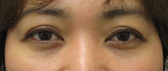 Eyelid retraction repair in thyroid disease by CO2 laser after 259541