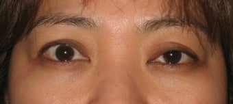 Eyelid retraction repair in thyroid disease by CO2 laser before 259541
